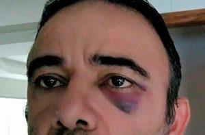 Agente de trânsito afirma ter sido agredido