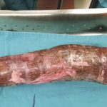 Uma mulher enfiou uma mandioca de 30 cm na vagina e vai parar no hospital