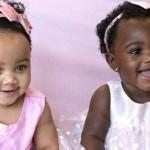 Irmãs GÊMEAS com cores de pele diferentes fazem sucesso na internet