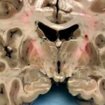 Resultado da autópsia em cérebro de atleta que se suicidou na prisão é surpreendente