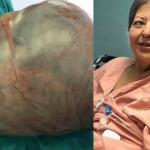 Mulher tira tumor de 30 Kg da barriga e médicos ficam aterrorizados
