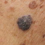 A grande mentira do século! Protetor solar NÃO previne contra o câncer de pele, entenda!