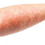 Doença de pele misteriosa deixa população em pânico na Bahia