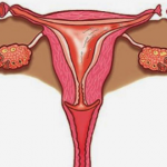 Mulher é indenizada por engravidar três anos após fazer laqueadura