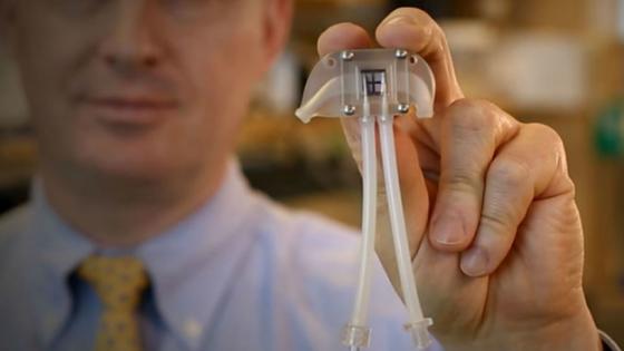 Nasce o rim biônico para dar adeus à máquina de hemodiálise