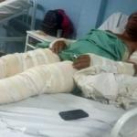 Adolescente de 16 anos coloca fogo na própria mãe e no padrasto