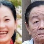 Doença misteriosa faz mulher de 26 anos aparentar mais de 70