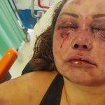 Acusado de agredir paisagista é internado em hospital psiquiátrico