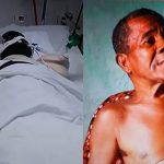 Idoso tem braços e orelhas amputados após ataque de Pit Bull na Bahia