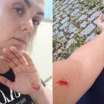 Ex-paquita se corta sozinha e acusa ex-marido de agressão