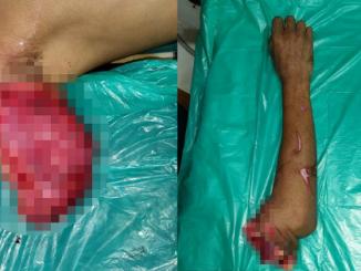 Homem que teve braço amputado