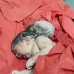 Pai tenta enterrar vivo bebê que nasceu com três cabeças